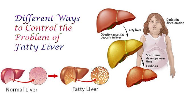 Knowing the Signs and Treatment for Fatty Liver Disease ...