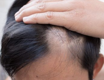 Genetic Hair Loss – The Questions You've Always Wanted to Ask